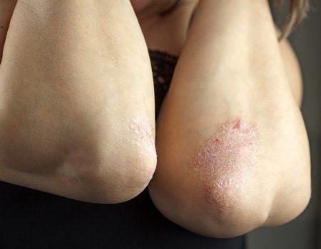 Psoriasis on elbow